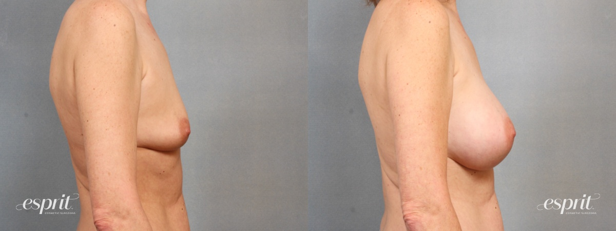 Case 1530 Before and After Right Side View