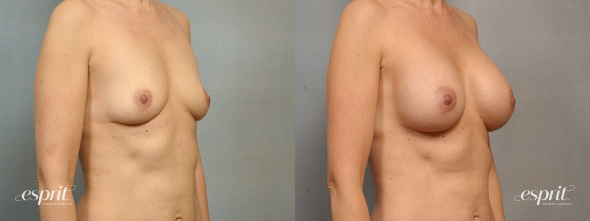 Case 1549 Before and After Right Oblique View