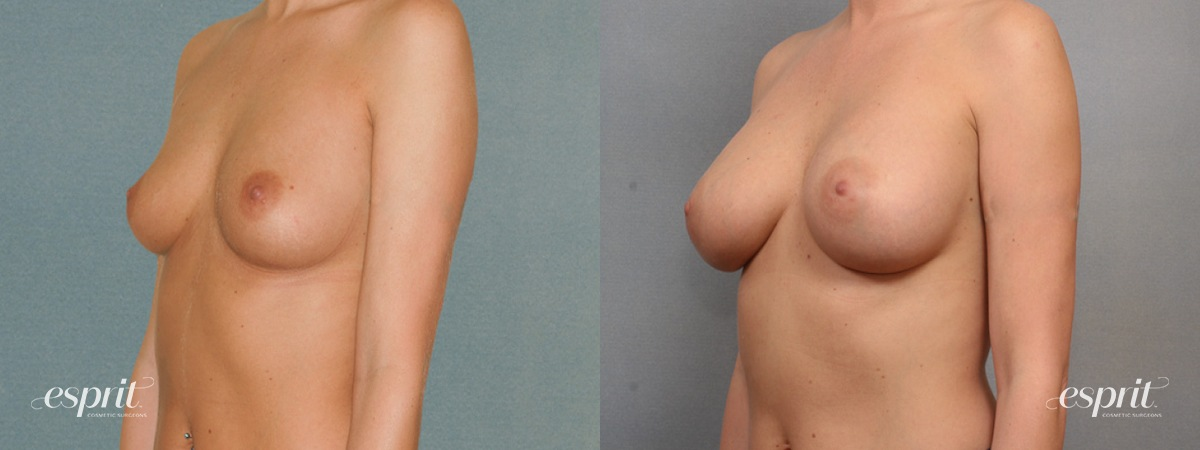 Case 1550 Before and After Left Oblique View