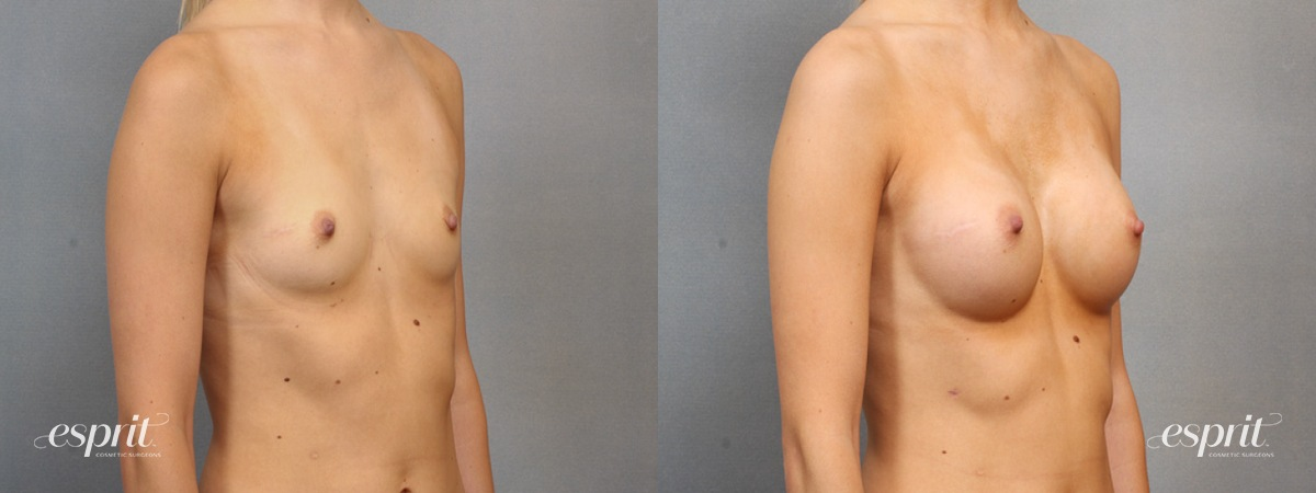 Case 1553 Before and After Right Oblique View