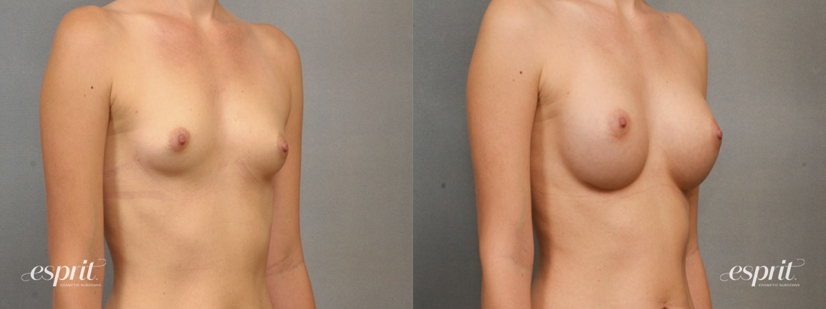 Case 1555 Before and After Right Oblique View