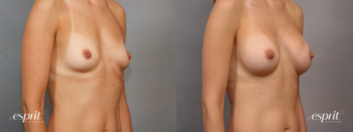 Case 1611 Before and After Right Oblique View