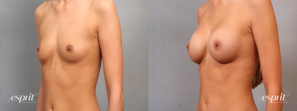 Case 1631 Before and After Left Oblique View