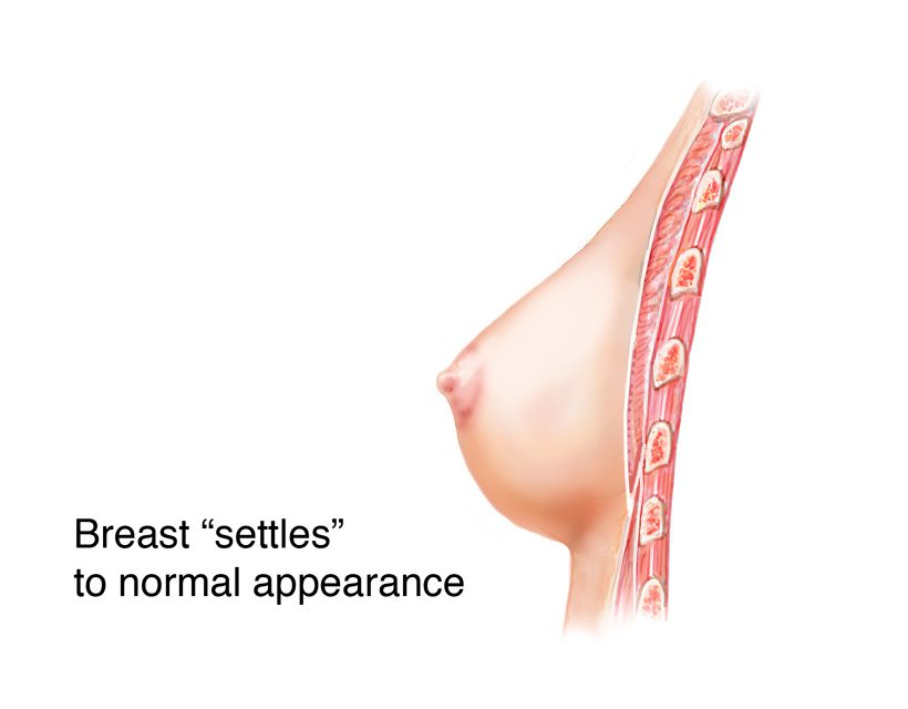 breast settles into a soft, natural appearance