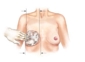 Breast Implant Dimensions Sizes Esprit Cosmetic Surgeons