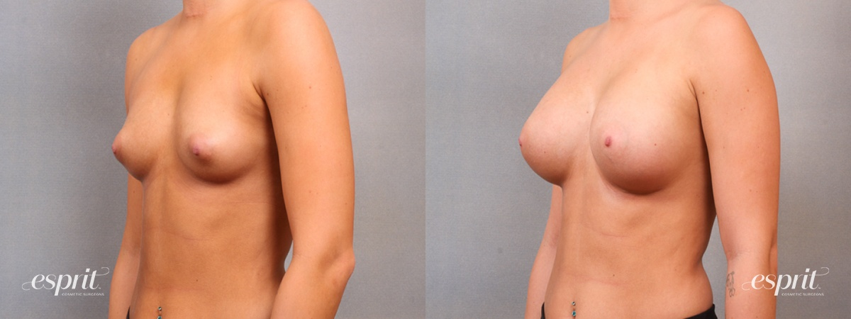 Case 1649 Before and After Left Oblique View