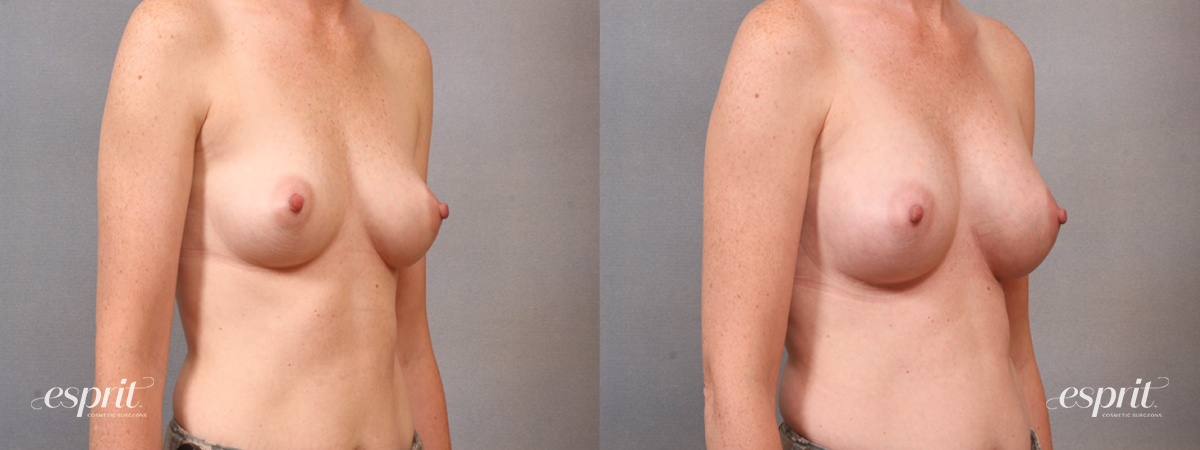 Case 1650 Before and After Right Oblique View