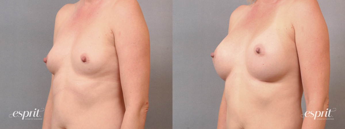 Case 1654 Before and After Left Oblique View