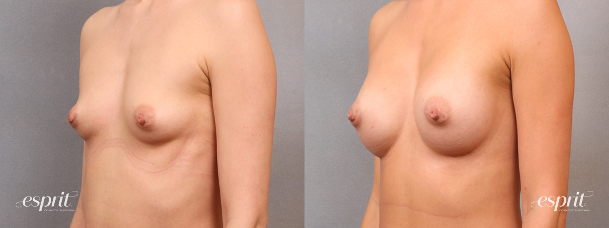 Case 1662 Before and After Left Oblique View