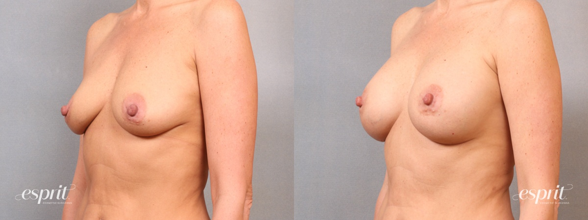 Case 1666 Before and After Left Oblique View