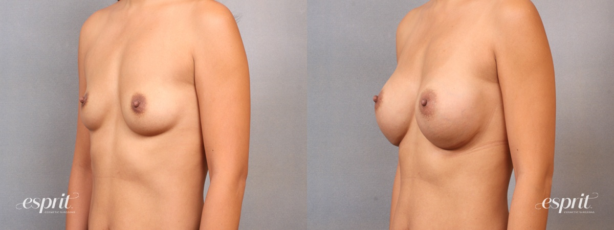 Case 1668 Before and After Left Oblique View
