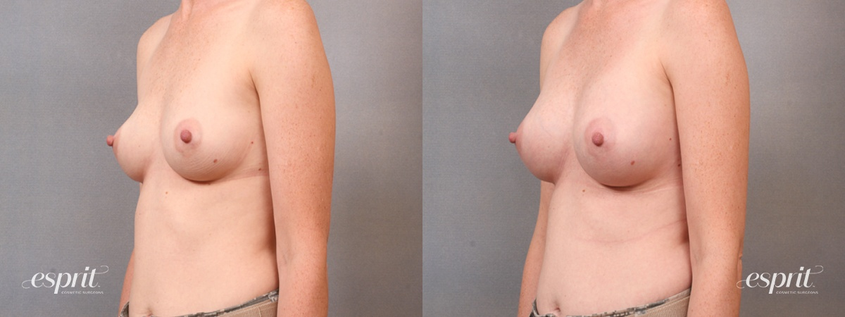 Case 1680 Before and After Left Oblique View