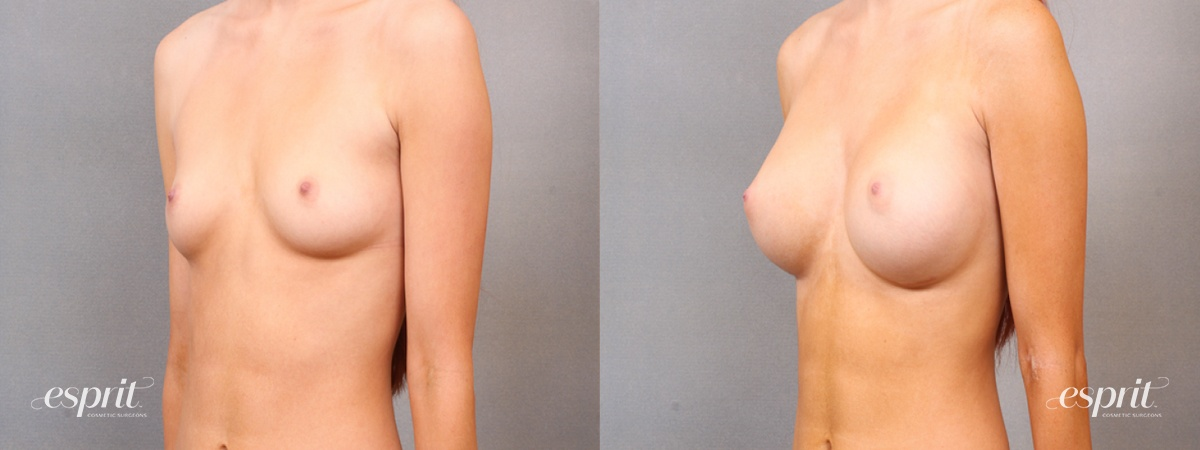Case 1685 Before and After Left Oblique View