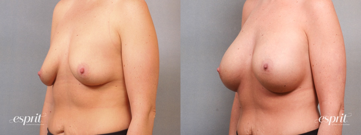 Case 1689 Before and After Left Oblique View