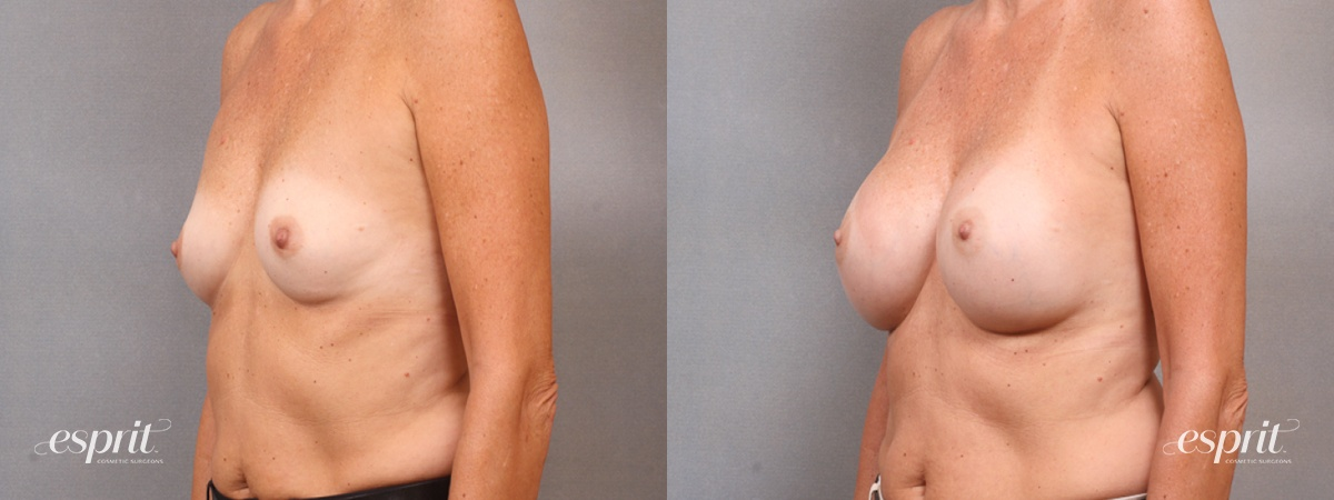 Case 1694 Before and After Left Oblique View