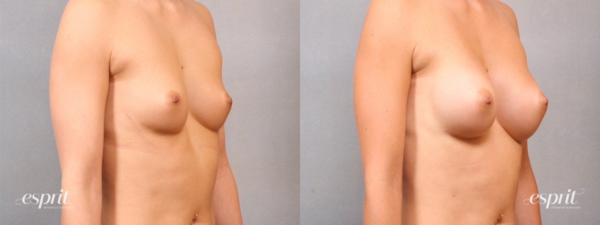 Case 1700 Before and After Right Oblique View