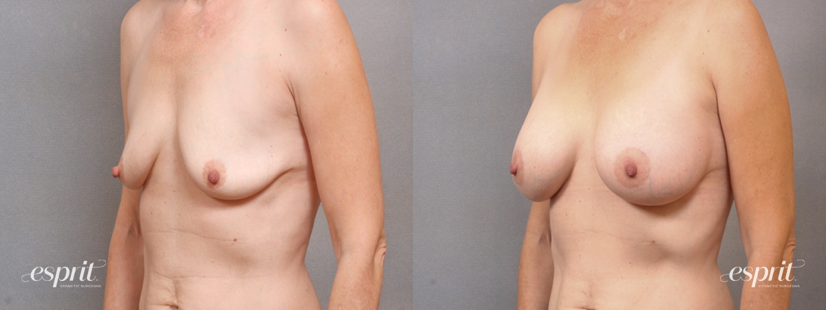 Case 1711 Before and After Left Oblique View