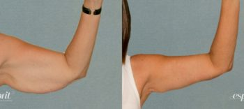 Case 1194 Before and After Left Arm Bent Front View