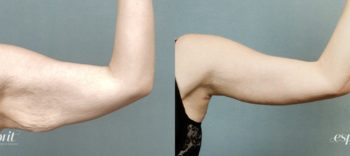 Case 1241 Before and After Left Arm Front View