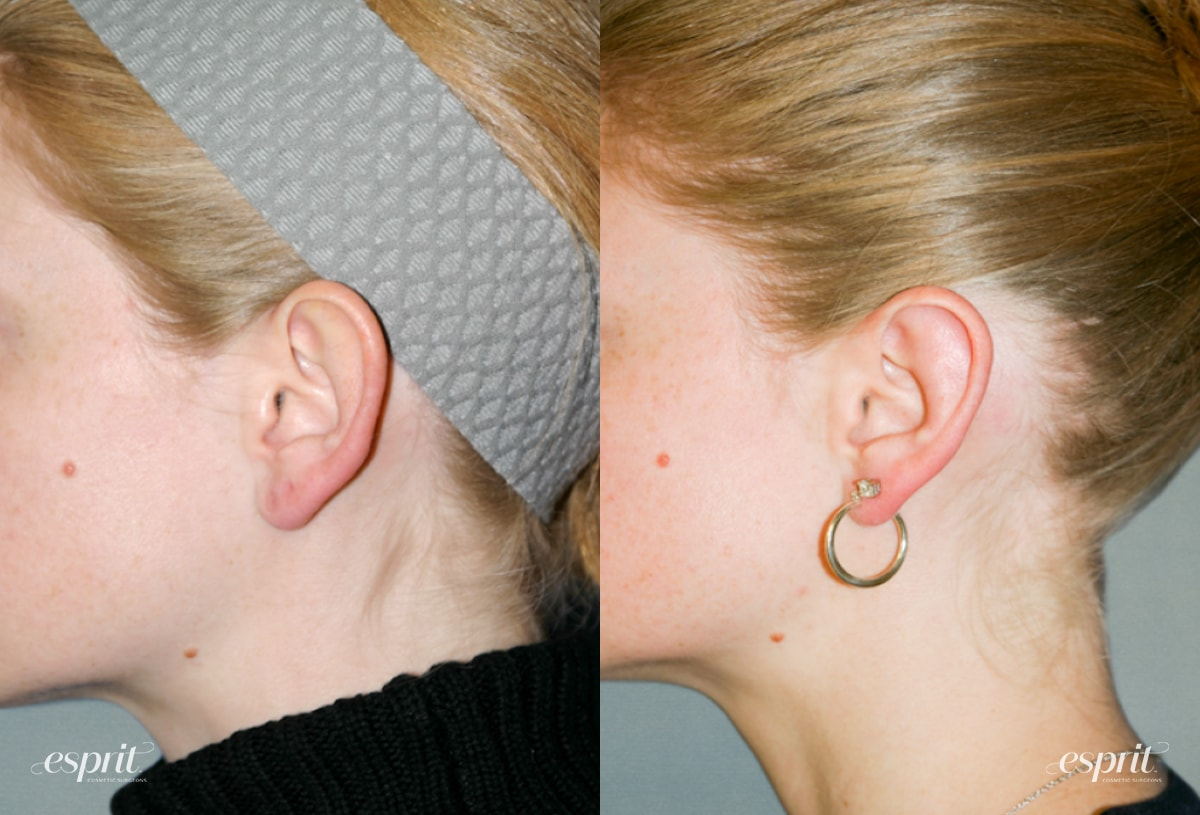 Case 1243 Before and After Left Ear View