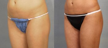 Case 1544 Before and After Left Oblique View