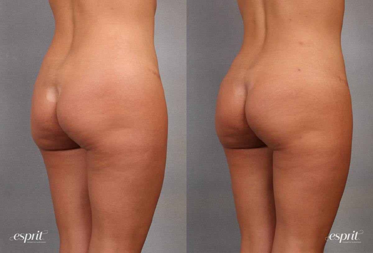 Case 1630 Before and After Back Oblique View