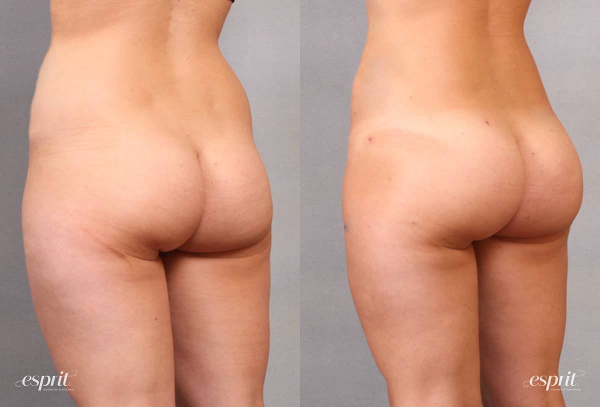 Case 1640 Before and After Back Oblique View