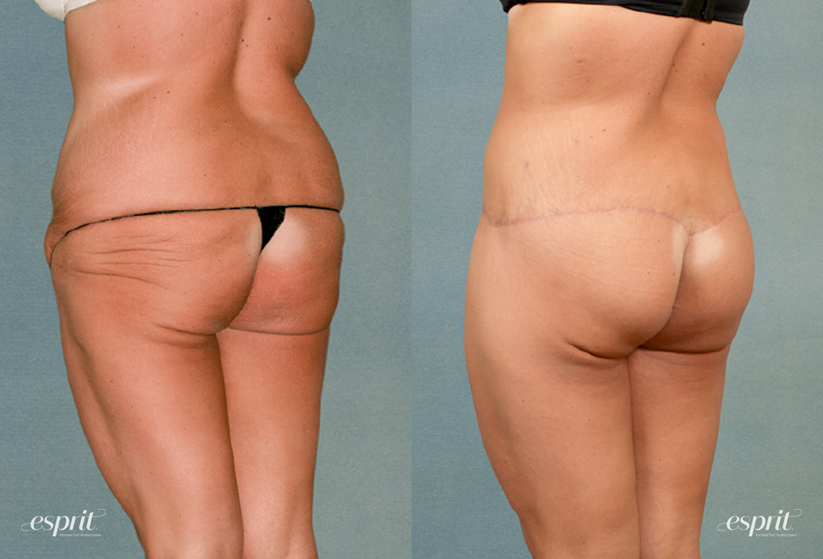 Case 1198 Before and After Back Oblique View