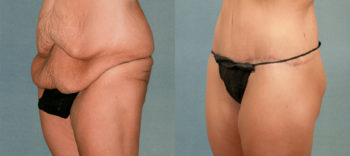 Case 1198 Before and After Left Oblique View