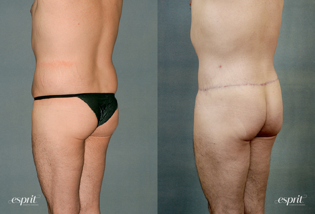 Case 1199 Before and After Back Oblique View