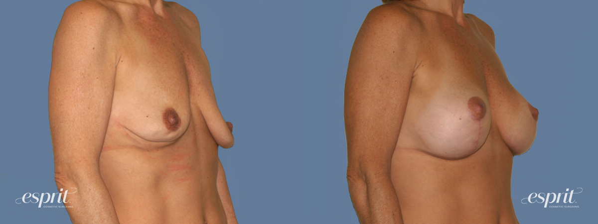 Case 1245 Before and After Right Oblique View