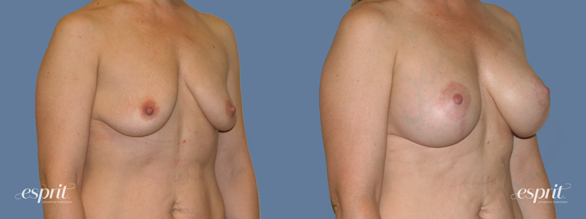 Case 1287 Before and After Right Oblique View
