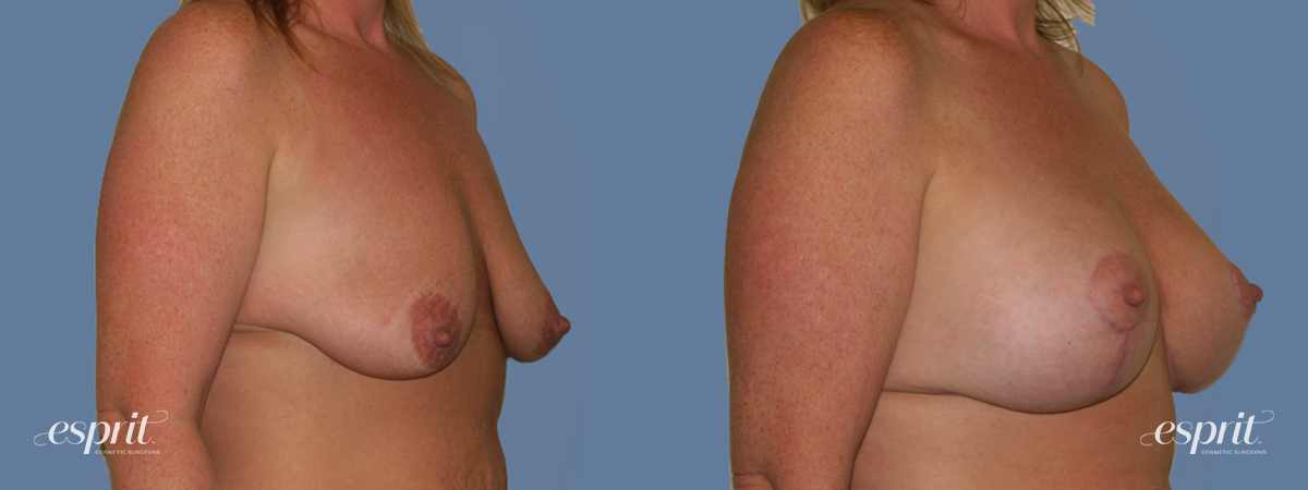 Case 1291 Before and After Right Oblique View