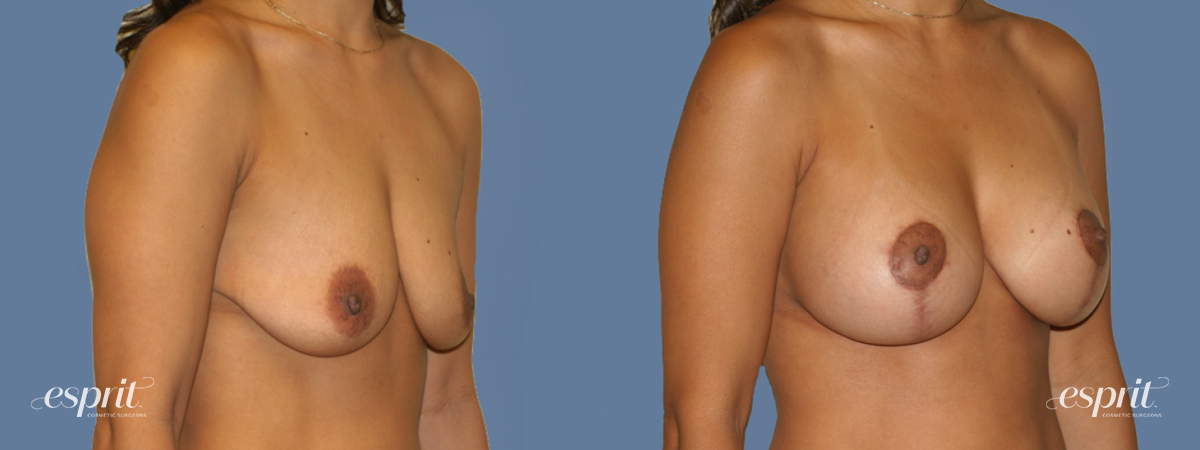 Case 1300 Before and After Right Oblique View