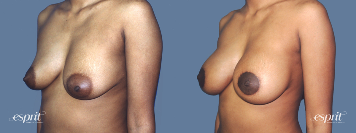 Case 1302 Before and After Left Oblique View