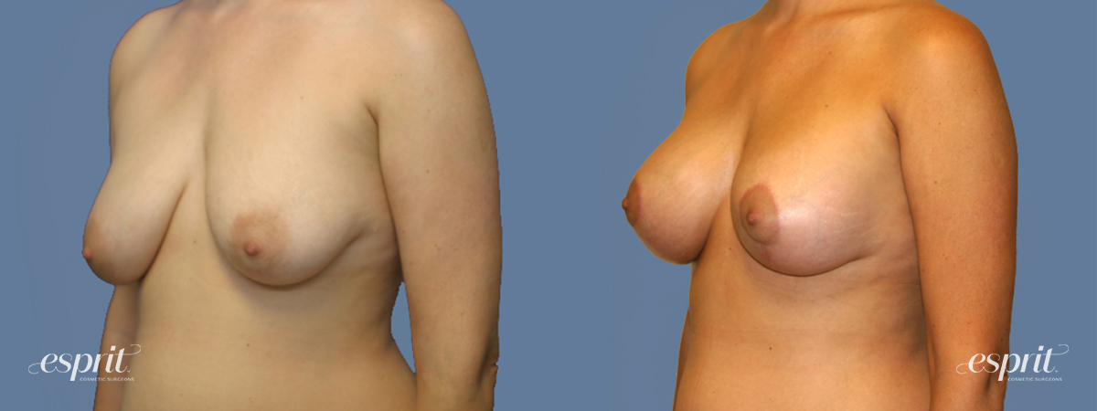 Case 1303 Before and After Left Oblique View