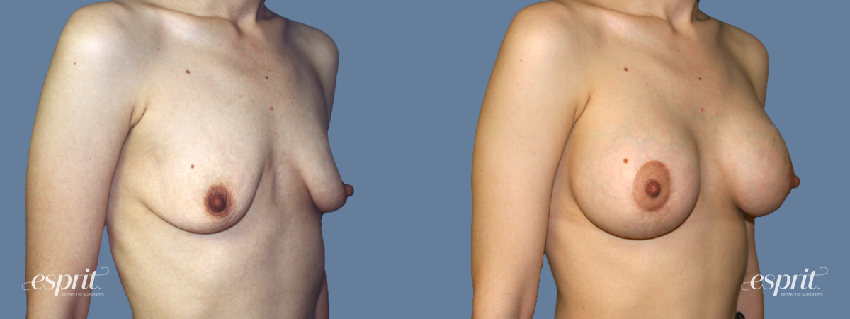Case 1305 Before and After Right Oblique View