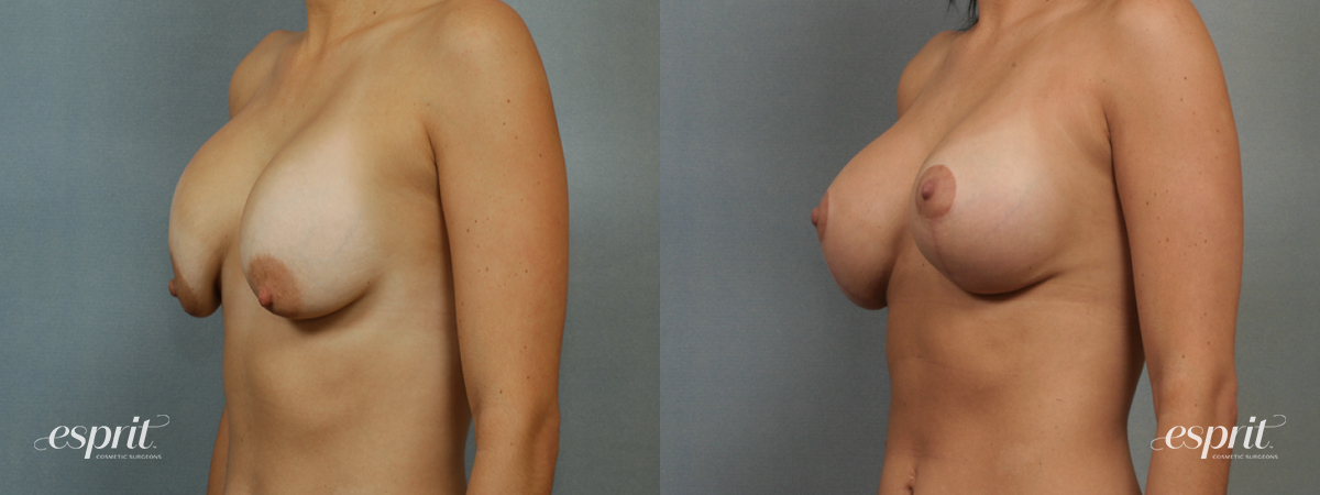 Case 1361 Before and After Left Oblique View