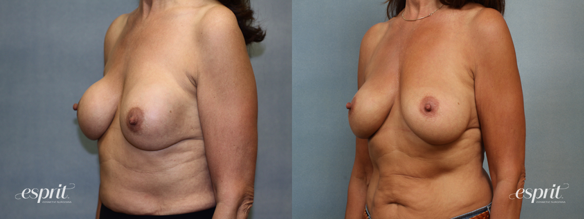 Case 1369 Before and After Left Oblique View