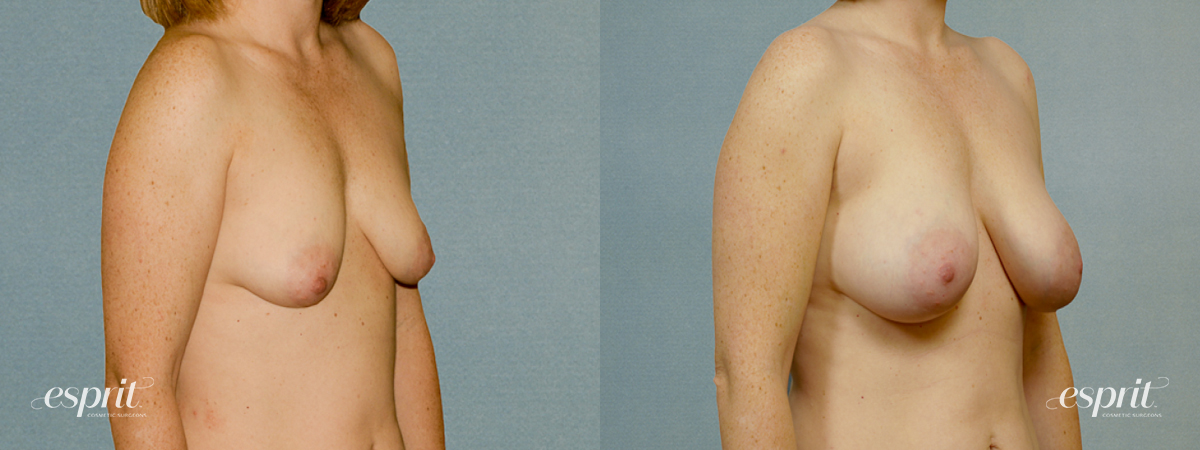 Case 1371 Before and After Right Oblique View