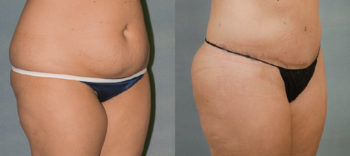 Case 1389 Before and After Right Oblique View