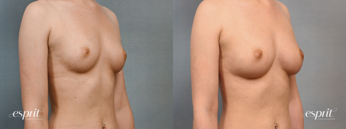 Case 1439 Before and After Right Oblique View
