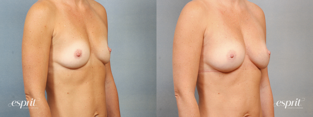 Case 1461 Before and After Right Oblique View