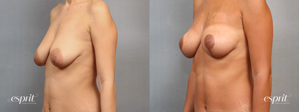 Case 1501 Before and After Left Oblique View