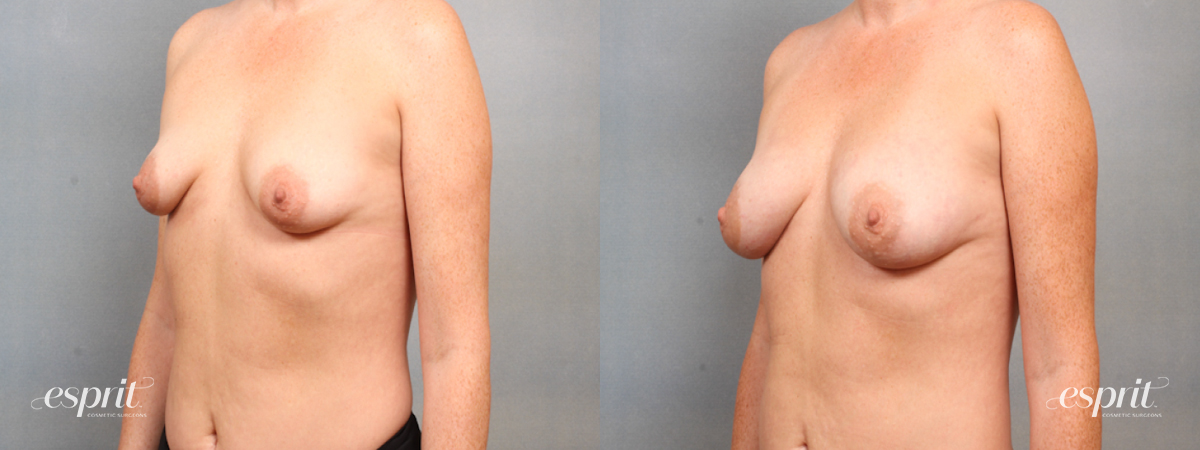Case 1515 Before and After Left Oblique View