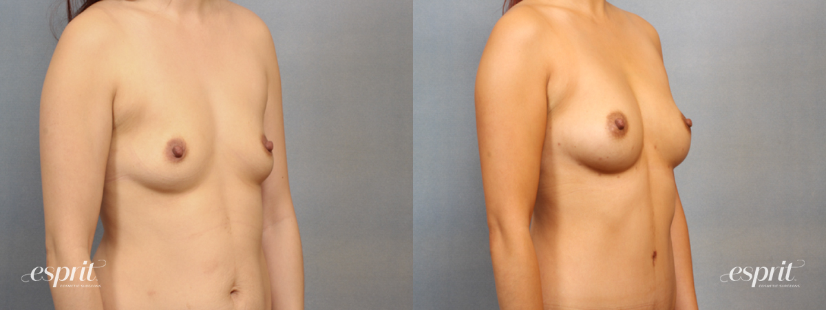 Case 1516 Before and After Right Oblique View