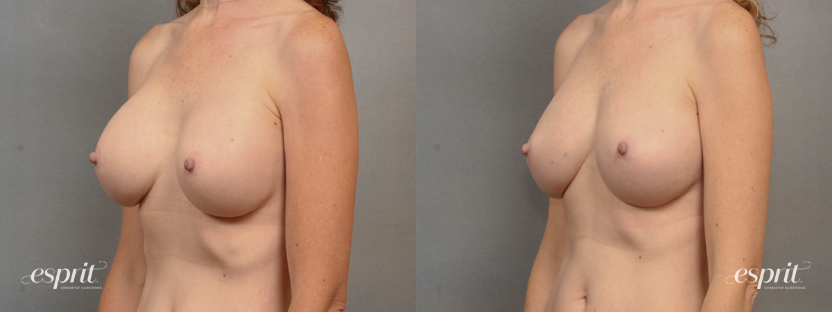 Case 1536 Before and After Left Oblique View