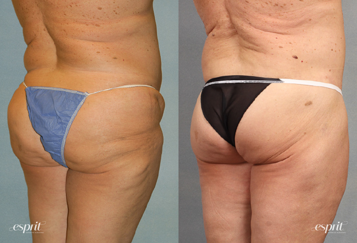 Case 1538 Before and After Back Oblique View