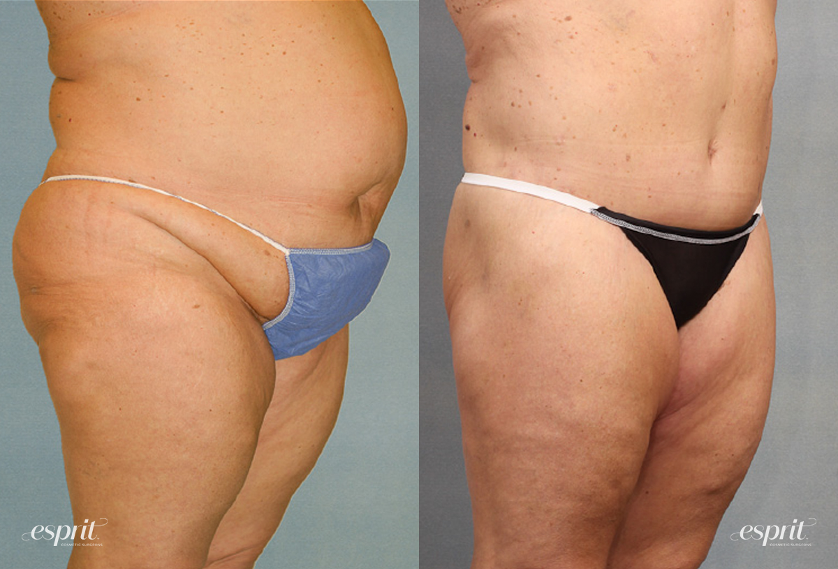 Case 1538 Before and After Right Oblique View