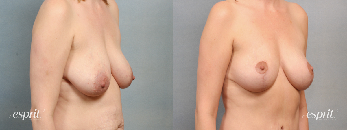 Case 1559 Before and After Right Oblique View
